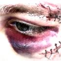 toby-blauw-oog